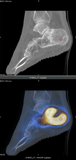SPECT images showing a stress fracture in the foot.